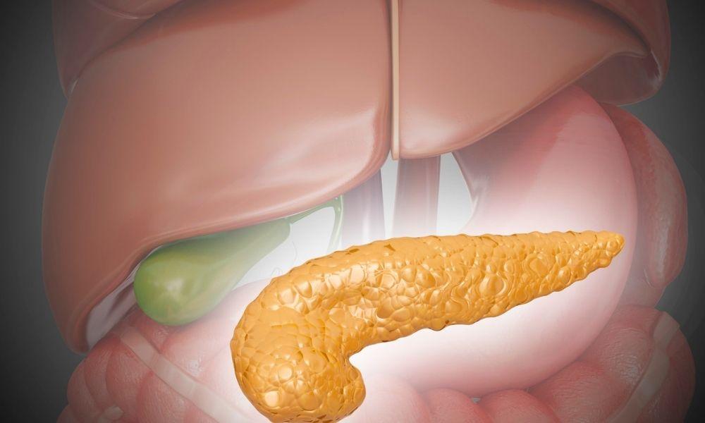 Pankreas Kistleri sempltomları