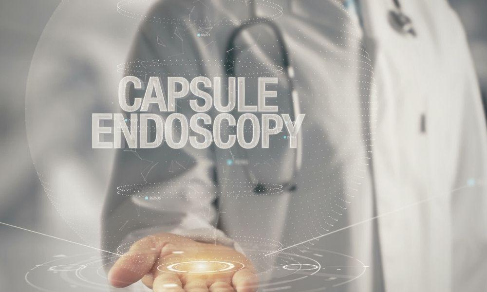 kapsül endoskopi nedir