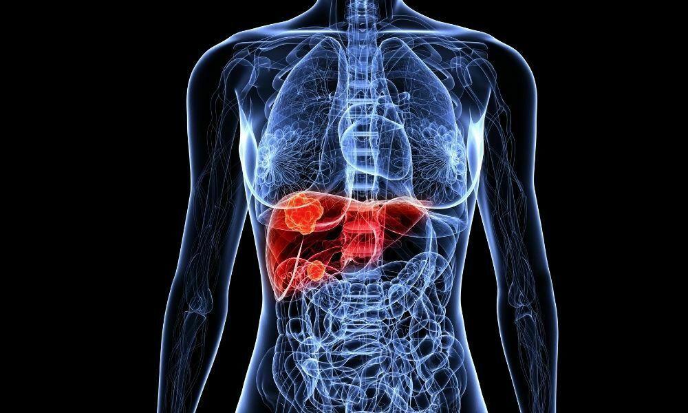 karaciğer kanseri tanısı