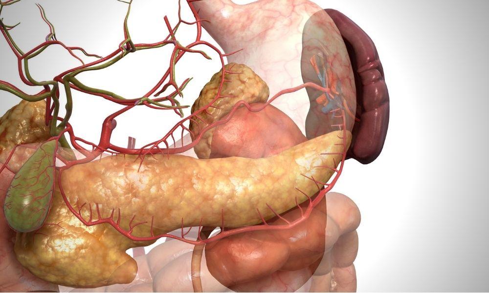 pankreas kanseri tanısı